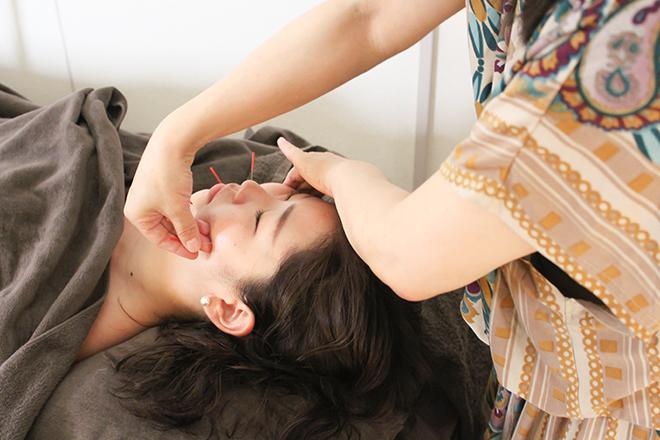 美容鍼サロン MIZUHA
