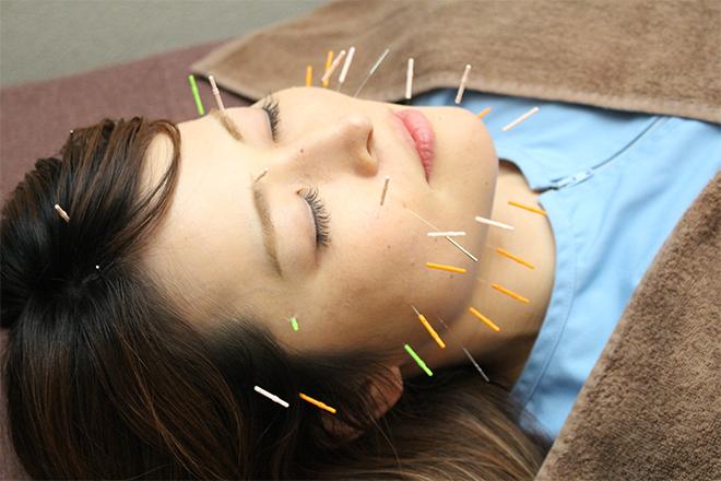 女性専用美容鍼灸サロン ヴィクトワール