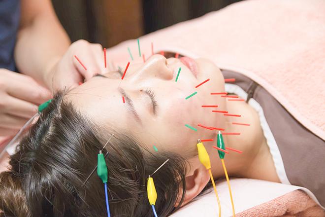 Resort 鍼灸サロン