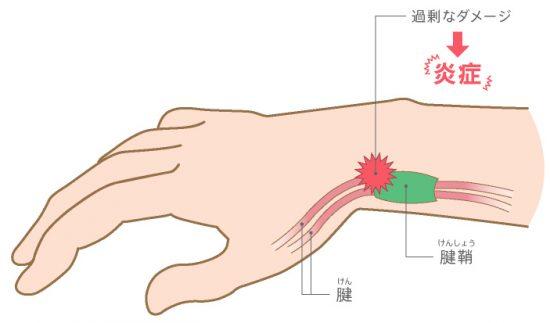 腱鞘炎-ケア-子_02