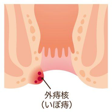 痔-産後_02
