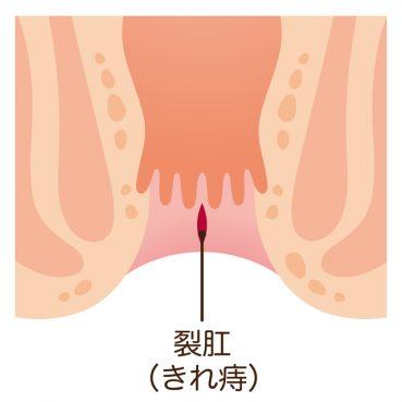 痔-産後_04