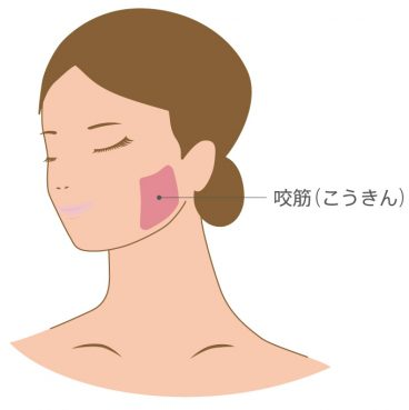咬筋の位置を示すイラスト