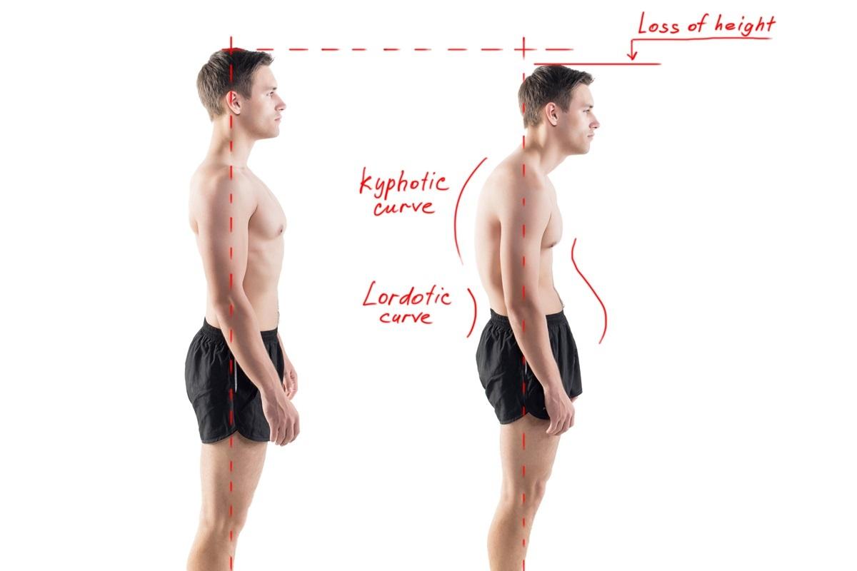 正常な姿勢と猫背の比較