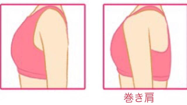 通常の肩と巻き肩の比較